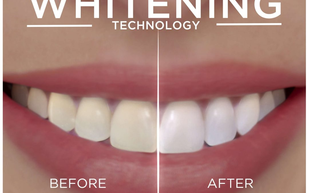 Resolution reached in patent case over Crest teeth whitening strips